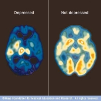 In clinical depression, significant changes occur in the brain's chemistry that are more than feeling sad. In this type